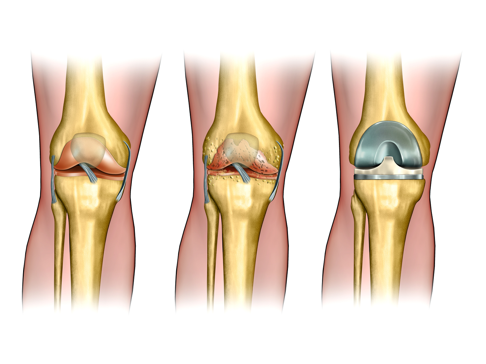 Эндопротез коленного сустава сша инфекция заболевание сустава